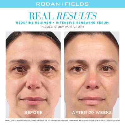 R+F real results before and after