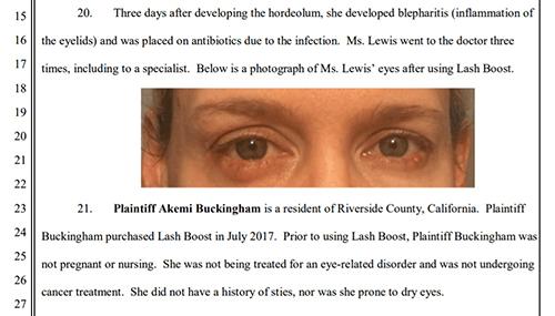 Rodan and Fields lawsuit